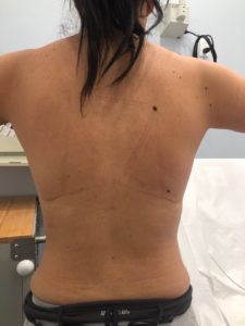 Back Lipo After